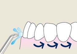 limpiando dientes con irrigador dental