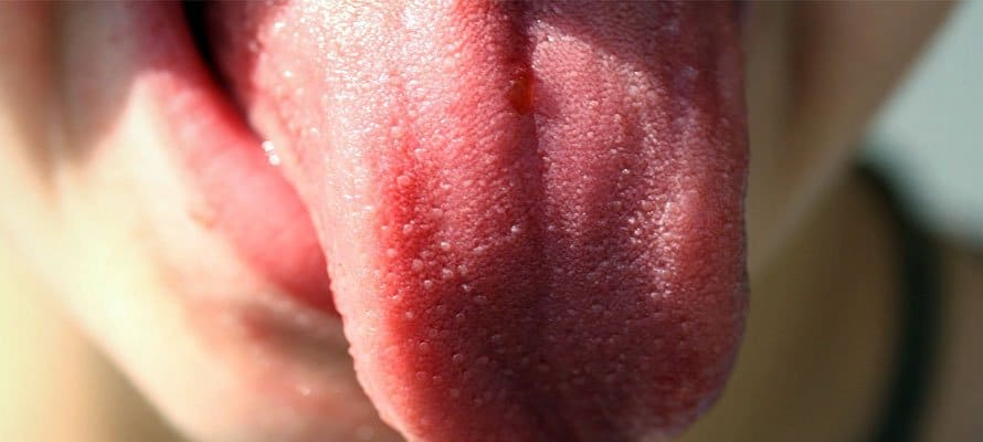 diseases of the tongue