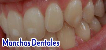 ✚ Manchas en los dientes: Causas, tipos y cómo eliminar las manchas dentales