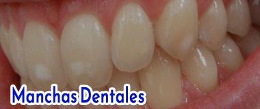 Manchas en los dientes: Causas, tipos y cómo eliminar las manchas dentales