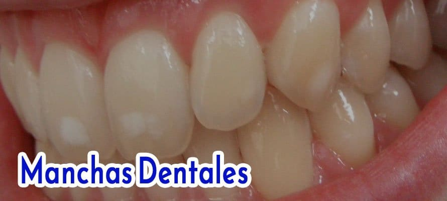 Tooth Stains: Causes, Types, and How to Remove Tooth Stains